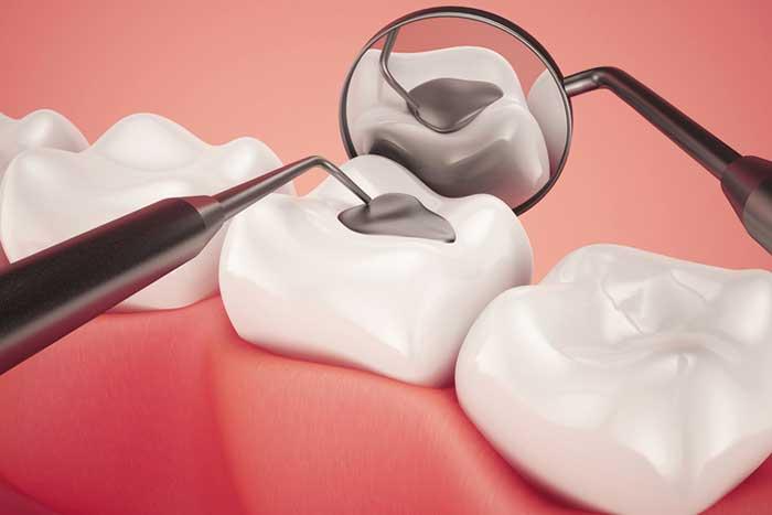 Dental Fillings in Kenya